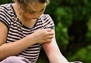 чем снять зуд от укуса комара
