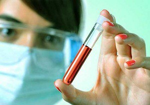 лимфоциты повышены у ребенка причины