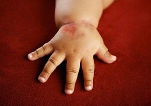 аллергия на клубнику у ребенка лечение