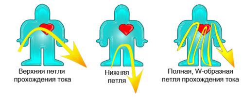 pervaya-pomoshch-pri-porazhenii-ehlektricheskim-tokom-poryadok-dejstvij.jpg