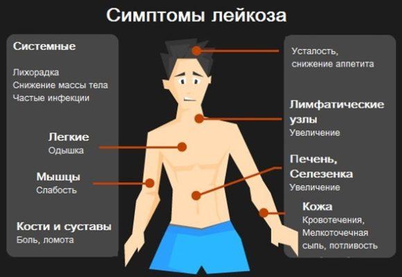 Лейкемия у детей симптомы.jpg