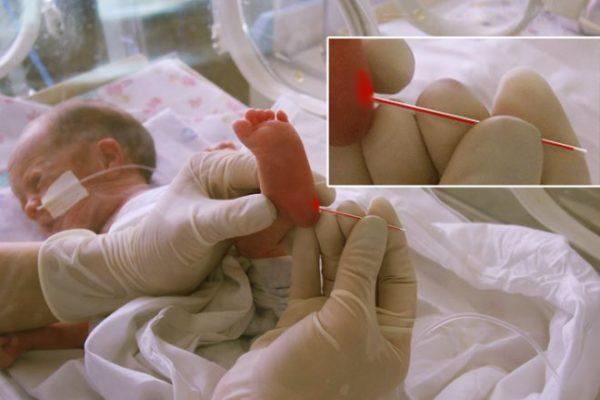 Скрининг новорожденных в роддоме.jpg