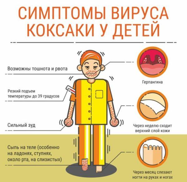 Вирус Коксаки: симптомы у детей.jpg