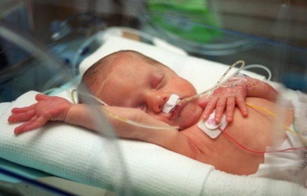 Недоношенный ребенок.jpg