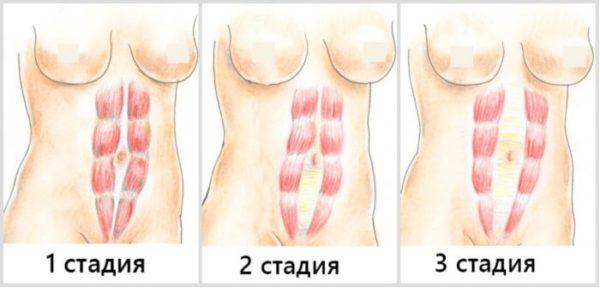 Диастаз после родов стадии.jpg